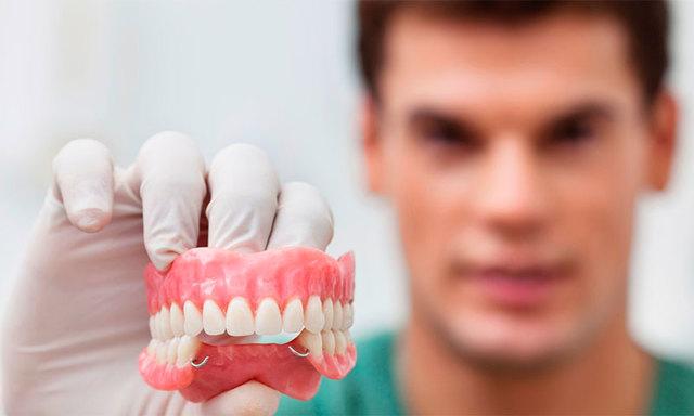 Протезирование зубов: виды (импланты, коронки, съемные мягкие зубные протезы), какой протез лучше, отзывы о зубопротезировании, фото, цены