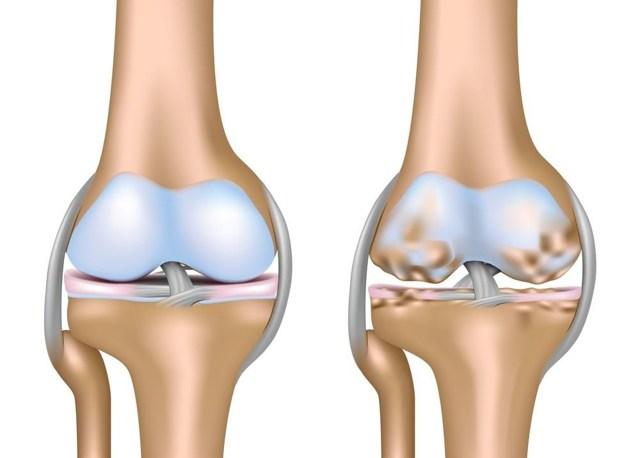 Наколенники при артрозе коленного сустава как выбрать размер, где купить, цены, отзывы